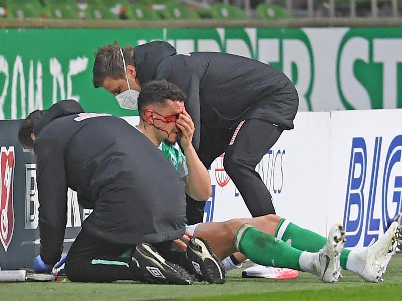 Brach sich gegen Mainz das Nasenbein: Milos Veljkovic