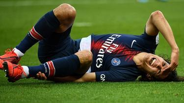 Cavani se retuerce de dolor sobre la hierba. (Foto: Getty)
