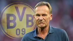 Hans-Joachim Watzke war mit dem Spiel des BVB gegen den FC Bayern nicht möglich