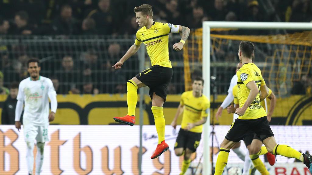 Kommt Marco Reus gegen Bayer Leverkusen zum Einsatz?
