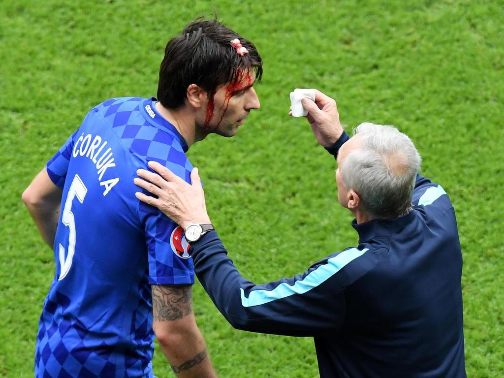 Vedran Ćorluka zog sich im Auftaktspiel der Kroaten gegen die Türkei eine Kopfverletzung zu
