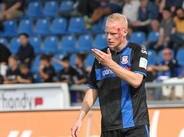 Tom Beugelsdijk van FSV Frankfurt heeft bloed aan zijn hoofd tijdens het competitieduel met VfL Bochum. (20-09-2014)